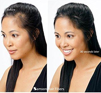 samson hair fibers hold the hairline